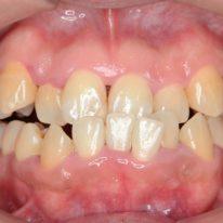 成人下顎前突(反対咬合、受け口)の矯正治療