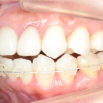 セカンドオピニオン ハーフリンガル症例 裏側矯正歯科医院の選び方