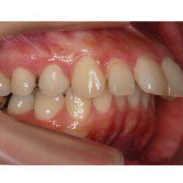 上顎前突(出っ歯)の診断と種類そして治療例とリスク