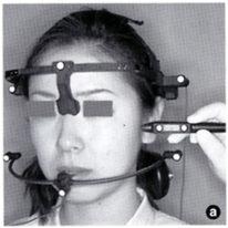 アイ矯正歯科クリニックの矯正治療前の精密検査
