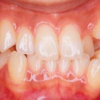 八重歯(叢生、乱杭)の治療と治療例